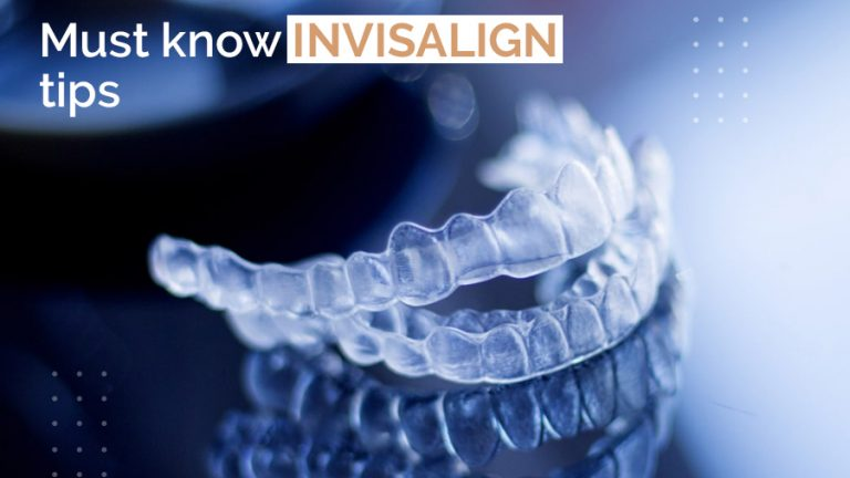 Must know Invisalign tips