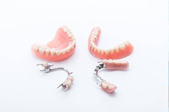 Here are The Top Reasons to Opt for Snap-up Dentures!